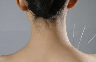 Faith in healing including acupuncture